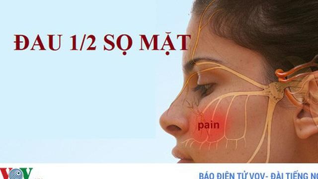 Đau nửa sọ mặt, bệnh gì?