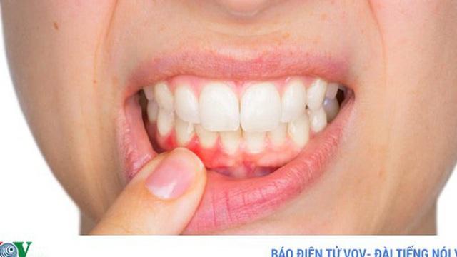 13 mẹo điều trị chảy máu chân răng hiệu quả tại nhà