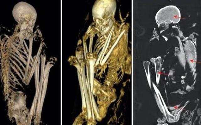 Hé lộ sự thật về xác ướp quái dị được ghép từ 6 thi thể người