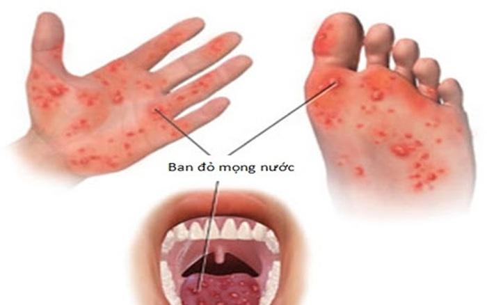 3 dấu hiệu cảnh báo bệnh tay chân miệng ở giai đoạn nặng