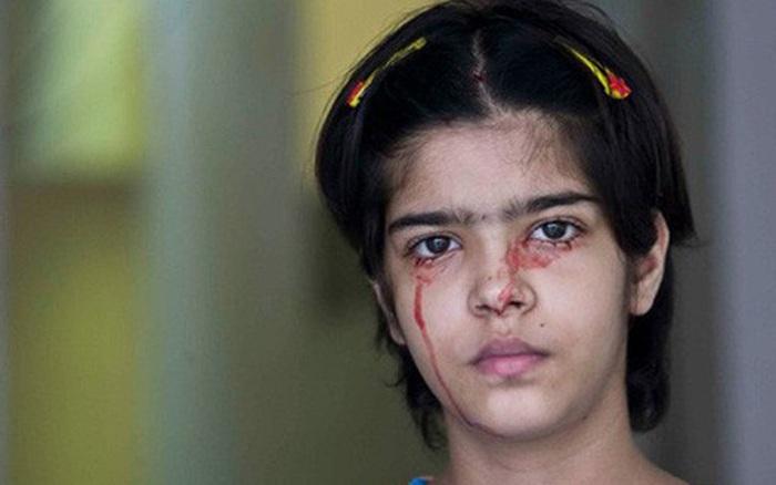 Giải mã bí ẩn của haemolacria: 'Chứng bệnh' khiến những cô gái Ấn Độ khóc ra máu