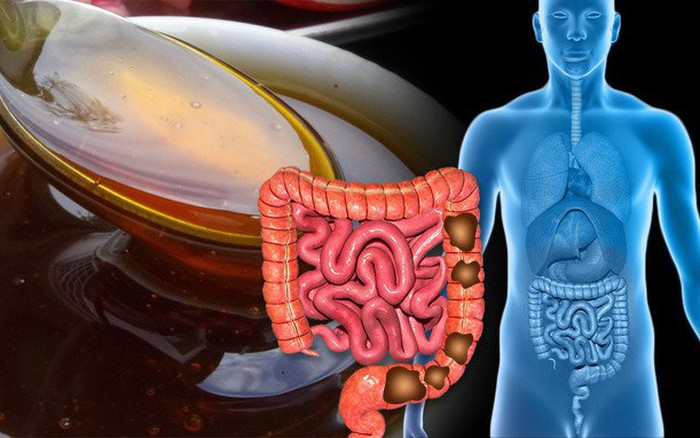 6 cách nhanh chóng giải quyết gọn chứng táo bón của bạn: Áp dụng để đường ruột khỏe hơn