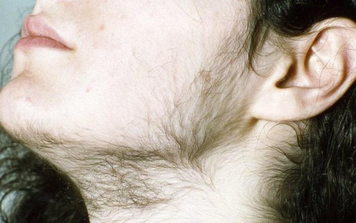 """Rùng mình với biến chứng mặt như """"pháo hoa"""", mọc lông rậm chỉ vì chữa bệnh theo quảng cáo"""