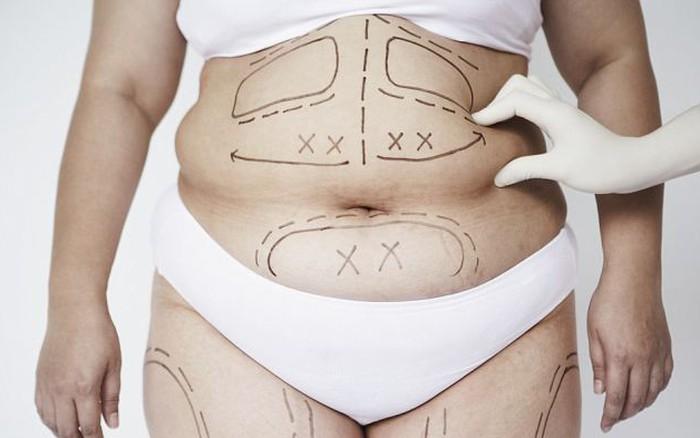 Ám ảnh vòng bụng to vòng đời ngắn: Có nên cắt mỡ bụng không, hãy nghe chuyên gia trả lời