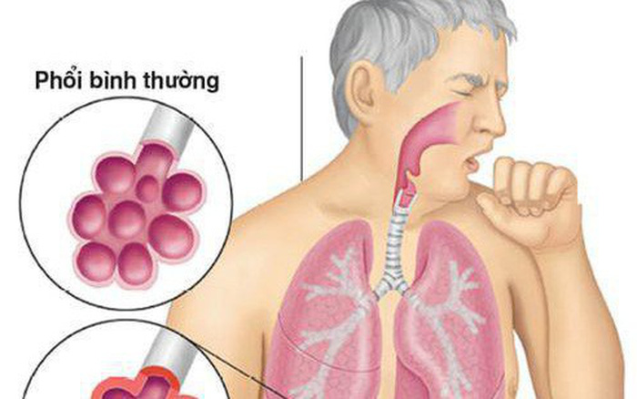 Căn bệnh khiến nam sinh phải mang bình oxy đi thi: Vì sao không thể chẩn đoán ra?