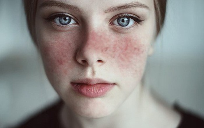 """8 căn bệnh mà cẩn thận còn """"sống chung với lũ"""", sơ sẩy thì vào ngay """"cửa tử"""": Nam giới cần để tâm 1 thì nữ..."""
